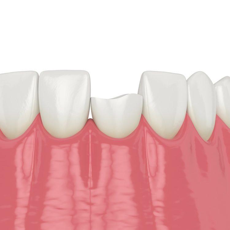 epanorthotiki-odontiatriki